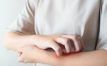 Juckreiz an der Haut durch allergische Reaktion.