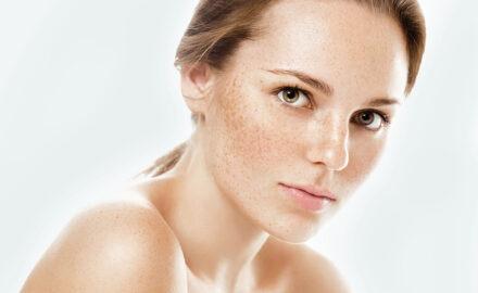 Frau mit Pigmentflecken auf der Haut.