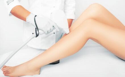Laserbehandlung am Bein.