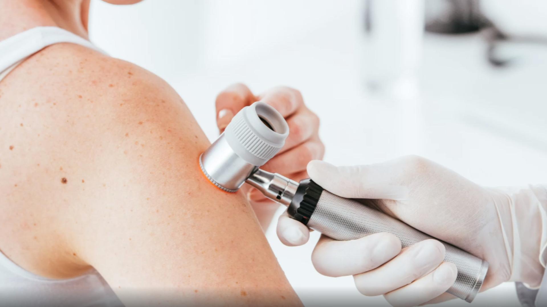 Hautarzt untersucht Haut mit Dermatoskop.
