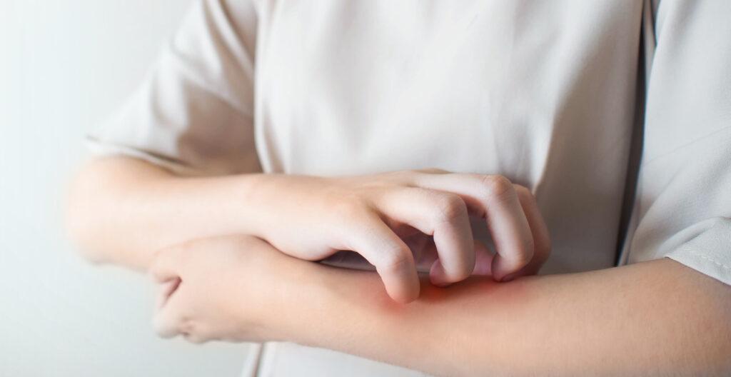 Mann mit allergischer Reaktion am Arm