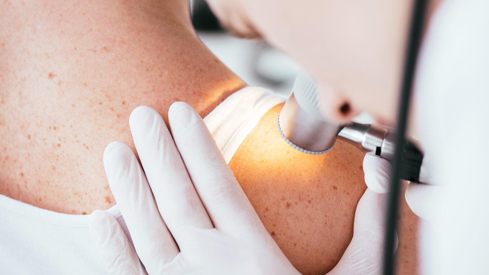 Arzt untersucht Haut auf Hauterkrankungen und Muttermalen.