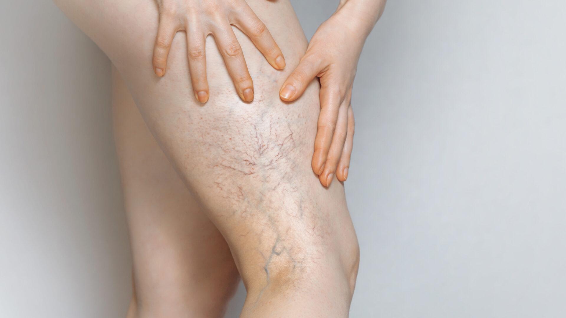 Bein mit Krampfadern.