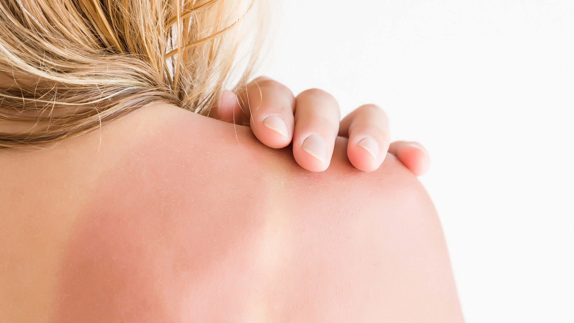 Patientin mit Lichtschaden an der Haut.