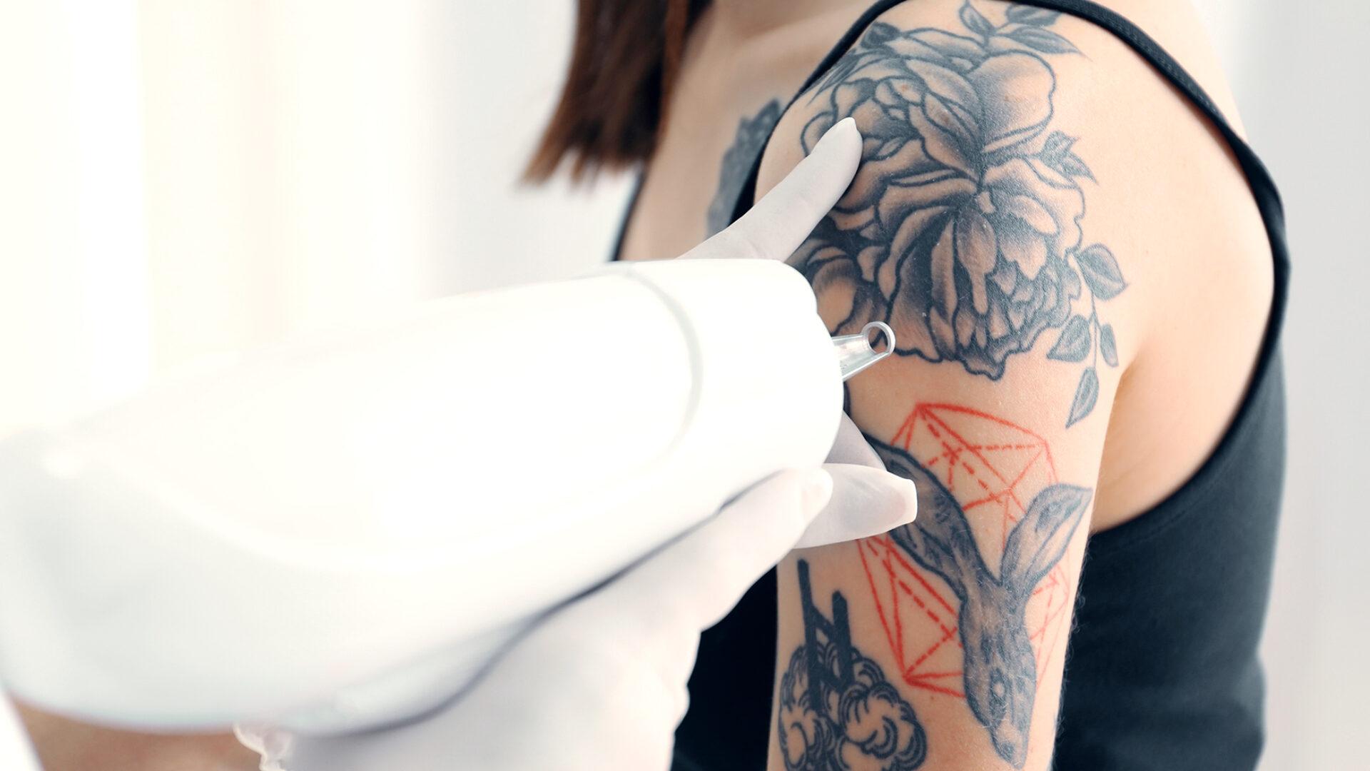 Entfernung von Tattoos.