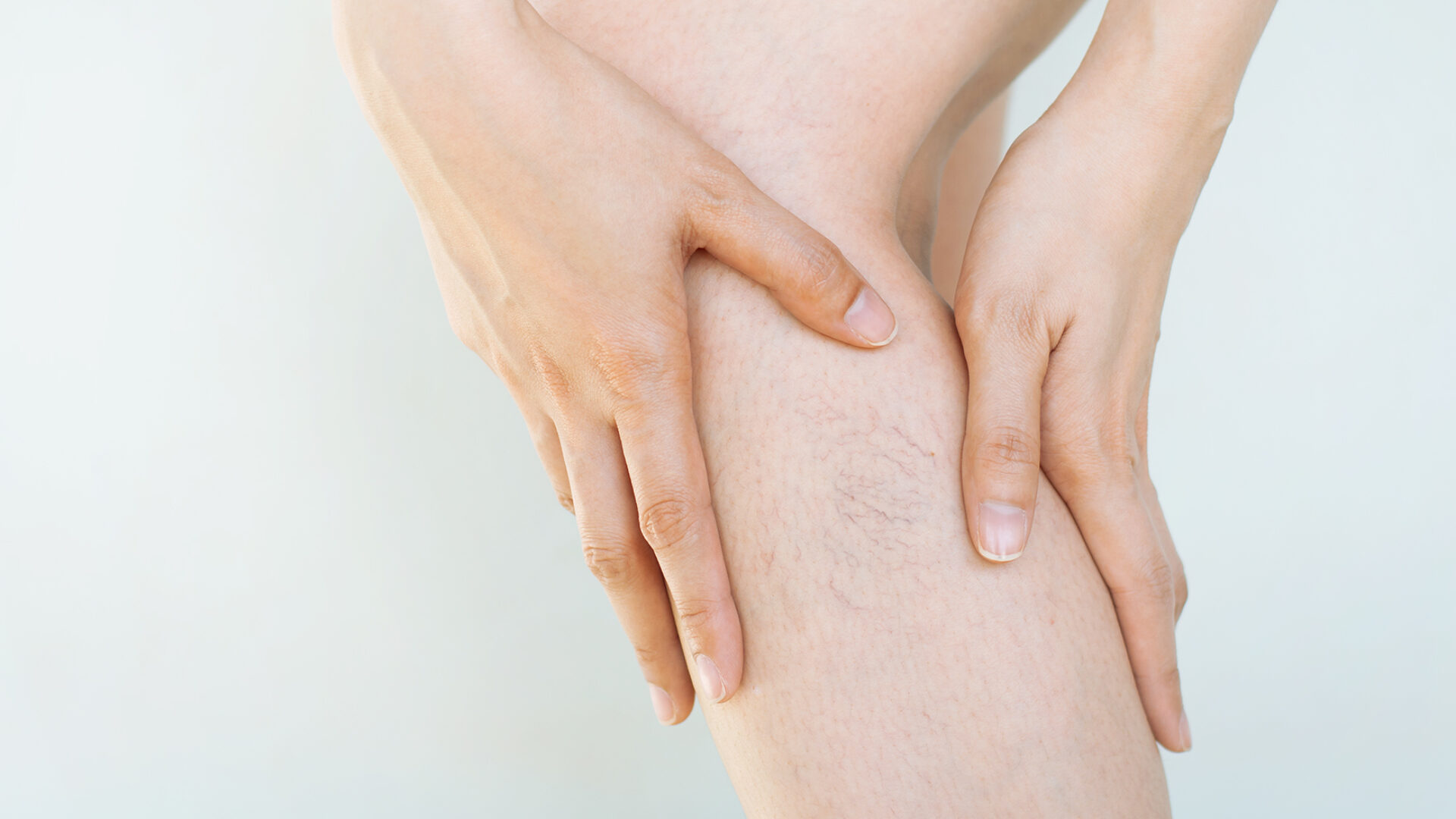Frau mit Stauungsekzemen am Bein.