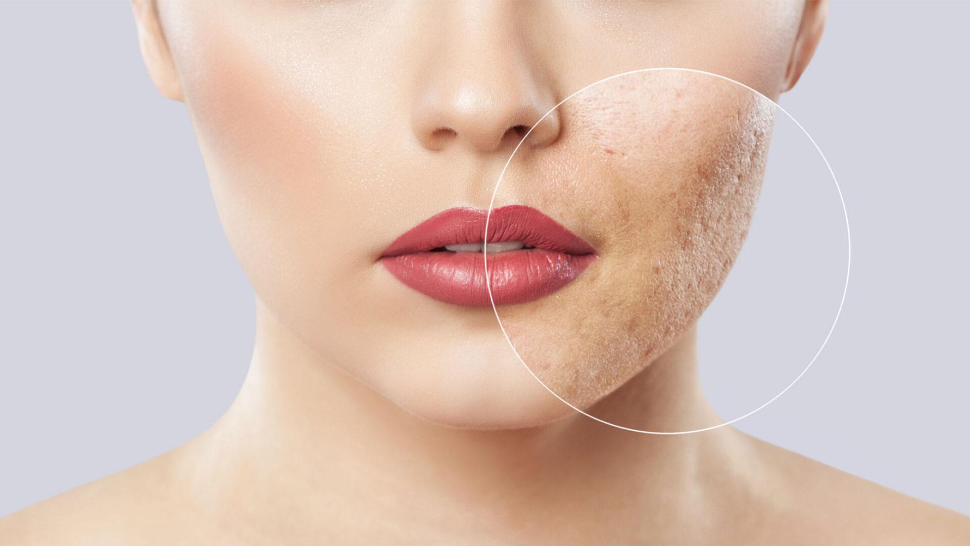 Haut mit Akne