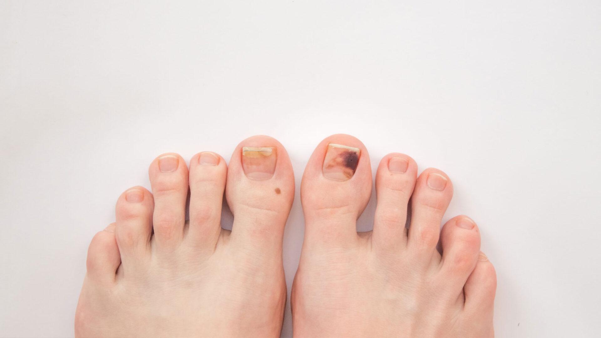 Corona Verfärbung Finger